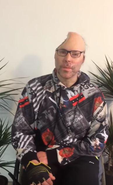 Rapper Dr. Knarf meldet sich nach Explosions-Unfall mit Schock-Video zurueck